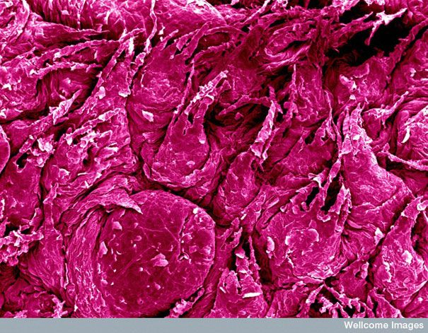 Surface of a tongue