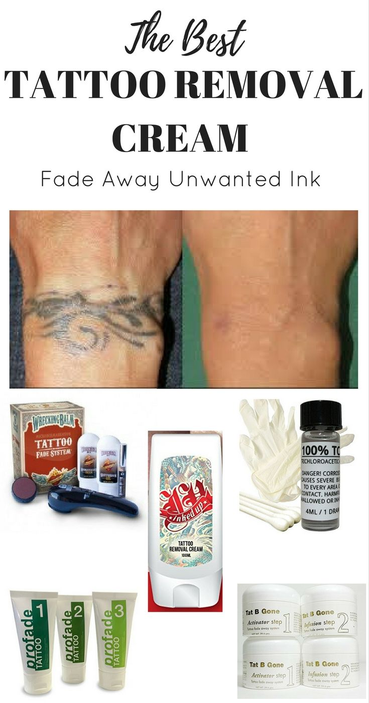 Best tattoo removal cream reviews mar 2021 tattoo