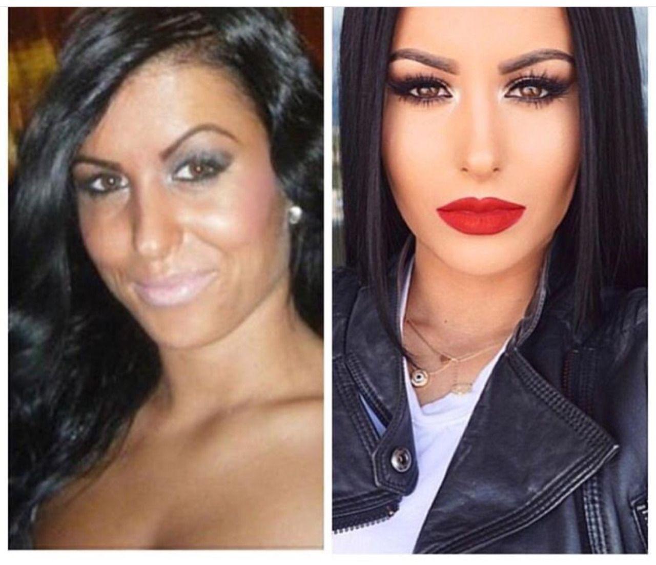Beauty secrets, which are silent plastic surgeons