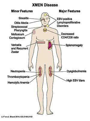 50761c09fa1e560ad3d3dc853bee95f5 - How To Get Rid Of Chronic Epstein Barr Virus