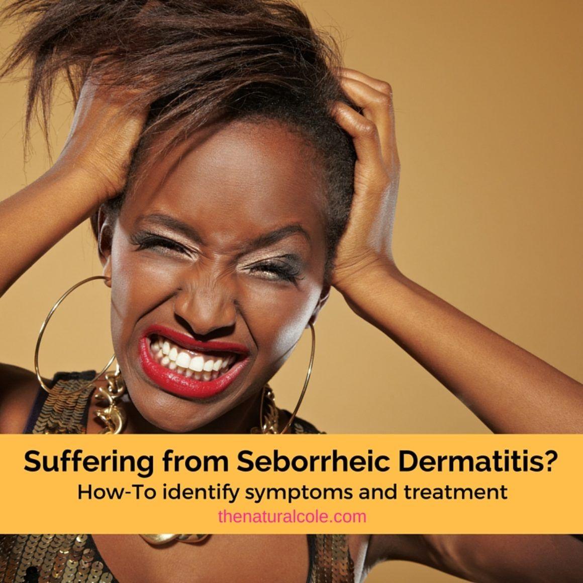 Are you suffering from Seborrheic Dermatitis? Seborrheic