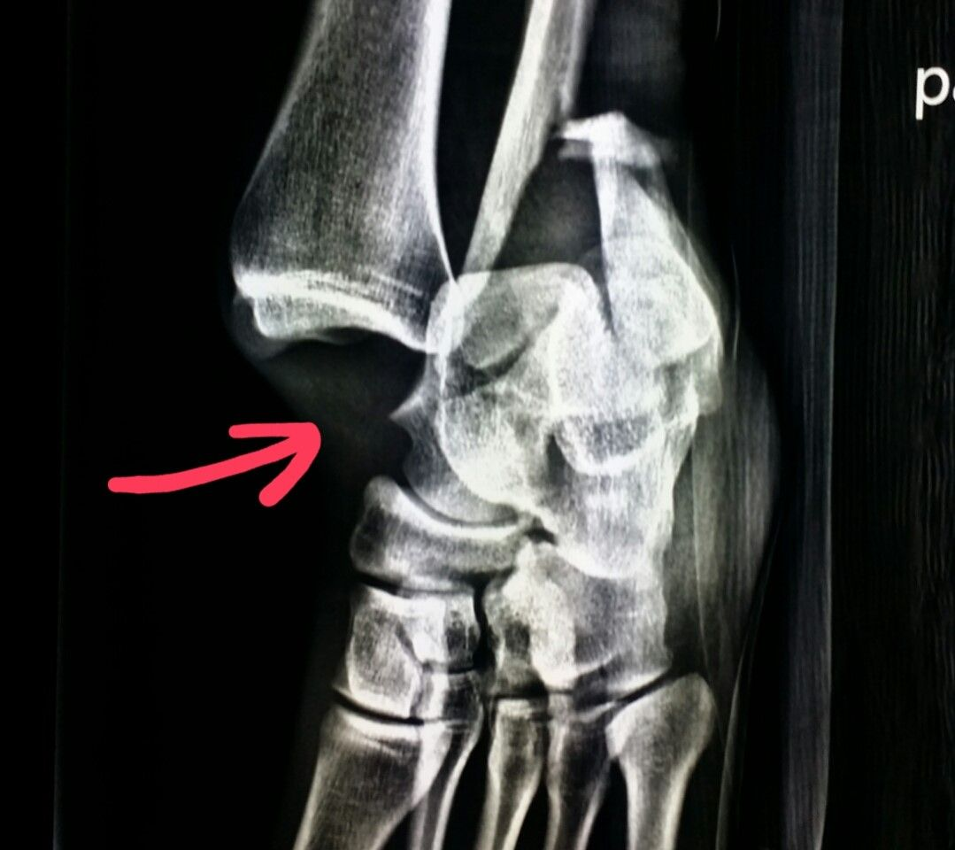 Ankle Fracture Xray Pinterest Radiology Radiology Schools And