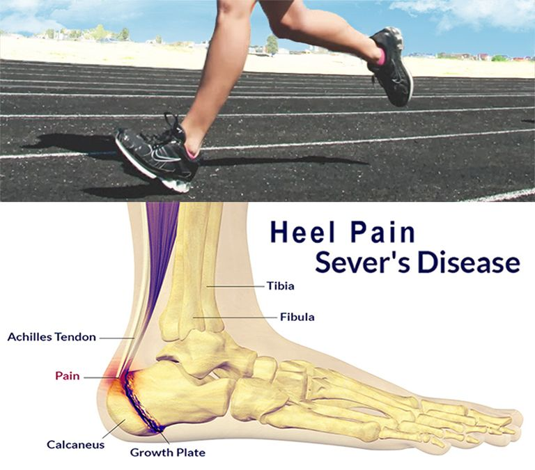 Heel Pain & Sever's Disease | Blogs | Sports Medicine Center for Young  Athletes at UCSF