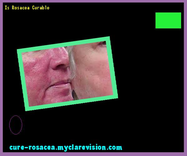 Is Rosacea Curable 181903 - Cure Rosacea