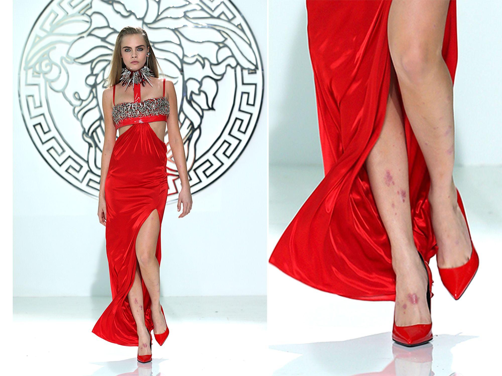 Model Cara Delevingne: The runway makes my skin 'erupt' with psoriasis