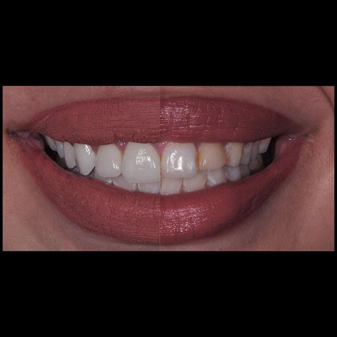 الإبتسامة الجميلة هي عنوان الثقة بالنفس ولا شك بأن البحث عن ابتسامة أجمل و أكثر جاذبية هو الدافع الرئيسي وراء معظم الزيارات لمرا Instagram Posts Teeth Makeover