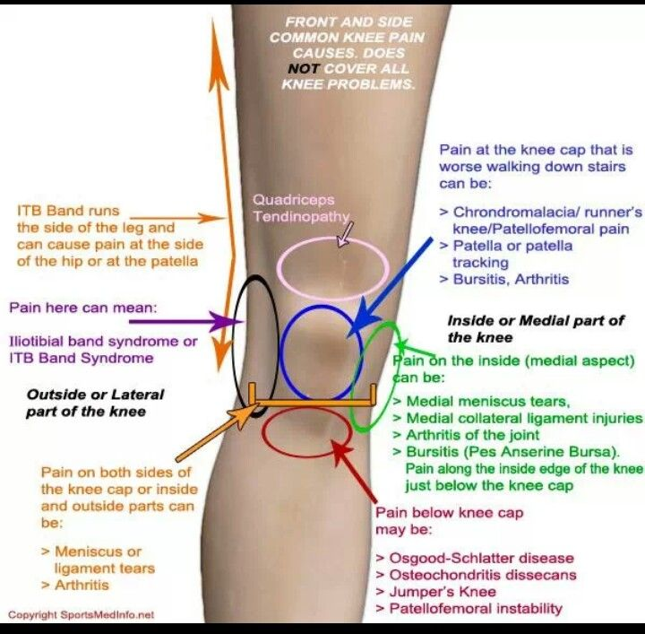 Anatomy Of Knee Pain Marathon Running Pinterest Knee Pain