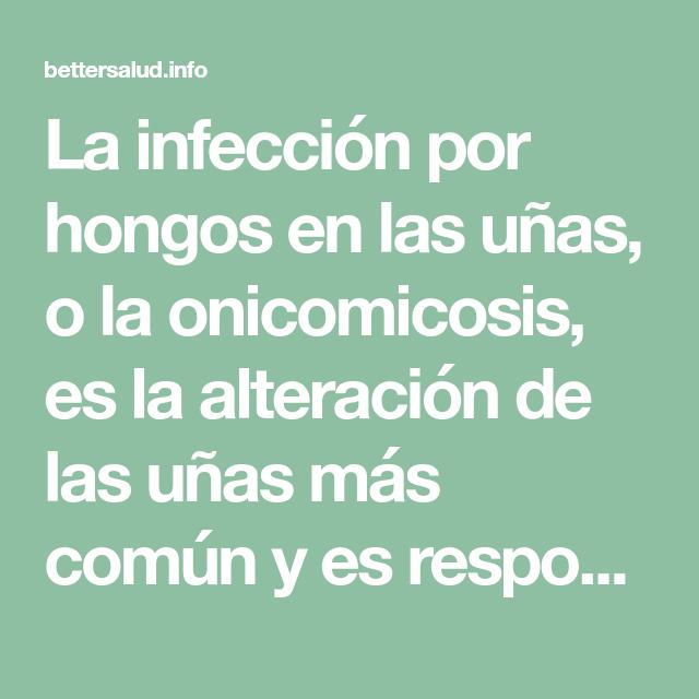 La infección por hongos en las uñas, o la onicomicosis, es la ...