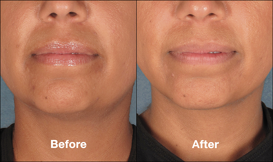 St Louis Kybella Double Chin Treatment Laser Lipo And Veins Double Chin Kybella Double Chin Double Chin Treatment