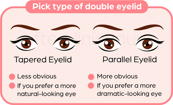 509da22e07861d1c5a6c75d7ad8d87d3 - How To Get Rid Of Double Eyelids Without Surgery