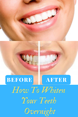 Whiten Your Teeth Overnight Beauty Tips And Tricks Pinterest