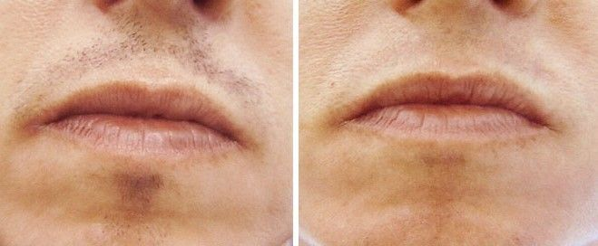 Laser Hair Removal Upper Lip Cost Reviews How Many Treatments