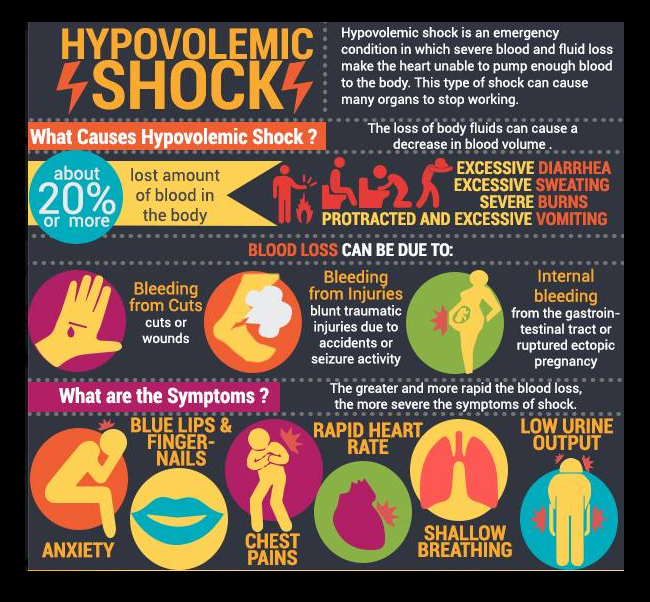 Hypovolemic shock best position sexual health