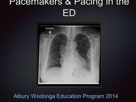 Pacemakers & Pacing in the ED Albury Wodonga Education