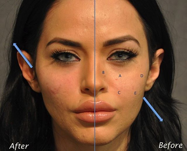 facial fillers comparison