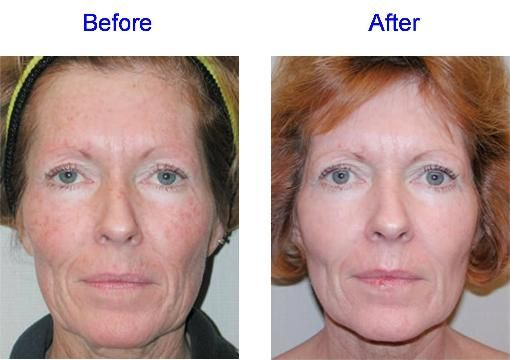Acid after before facial glycolic peel