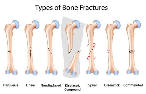 Knochenbrüche | Verletzungen und Reha | Pinterest | Knochenbruch ...