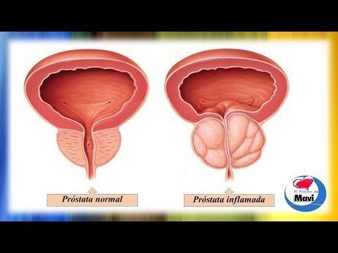 hiperplasia prostática benigna bph tratamiento natural