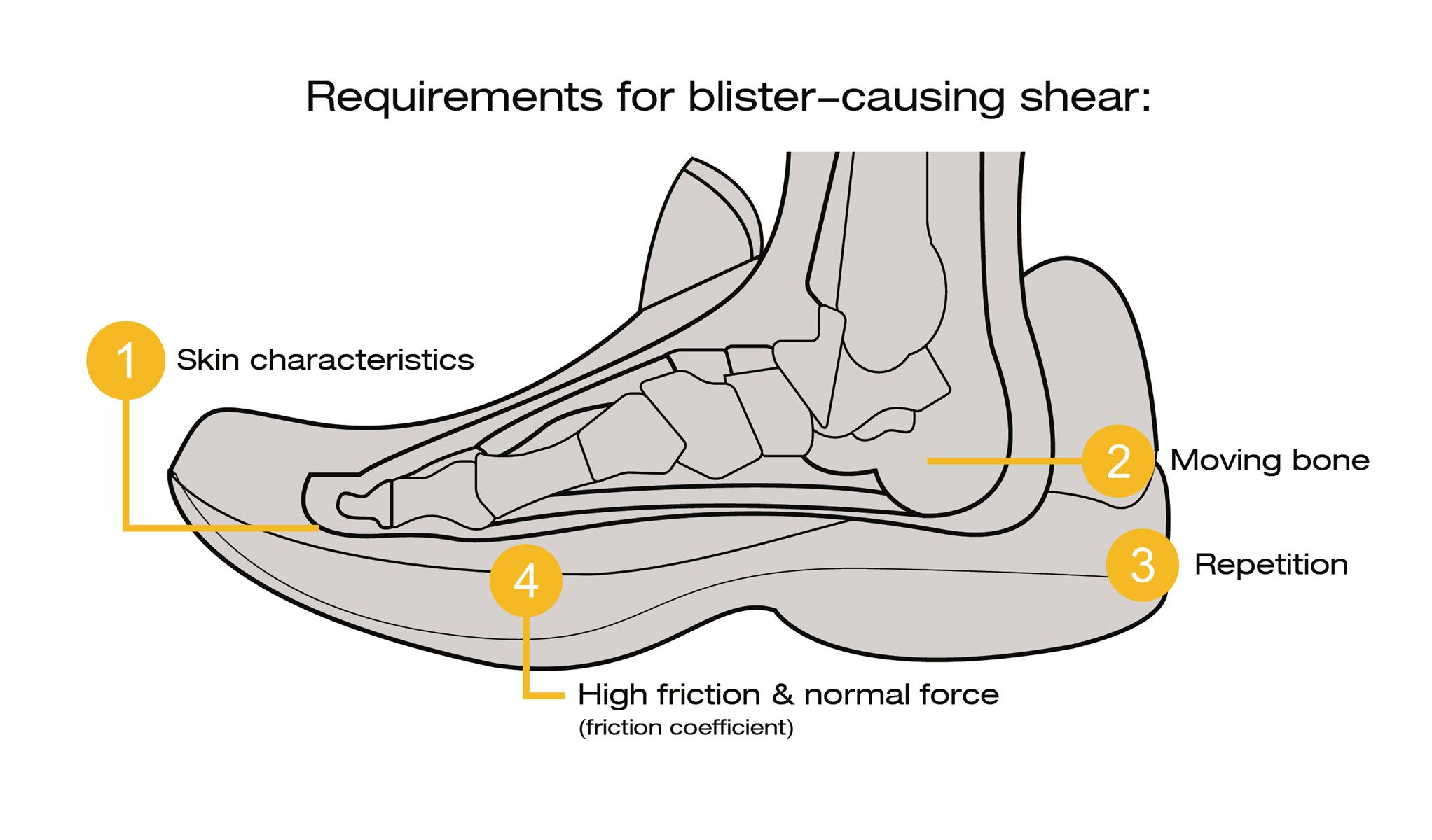hight resolution of blister diagram