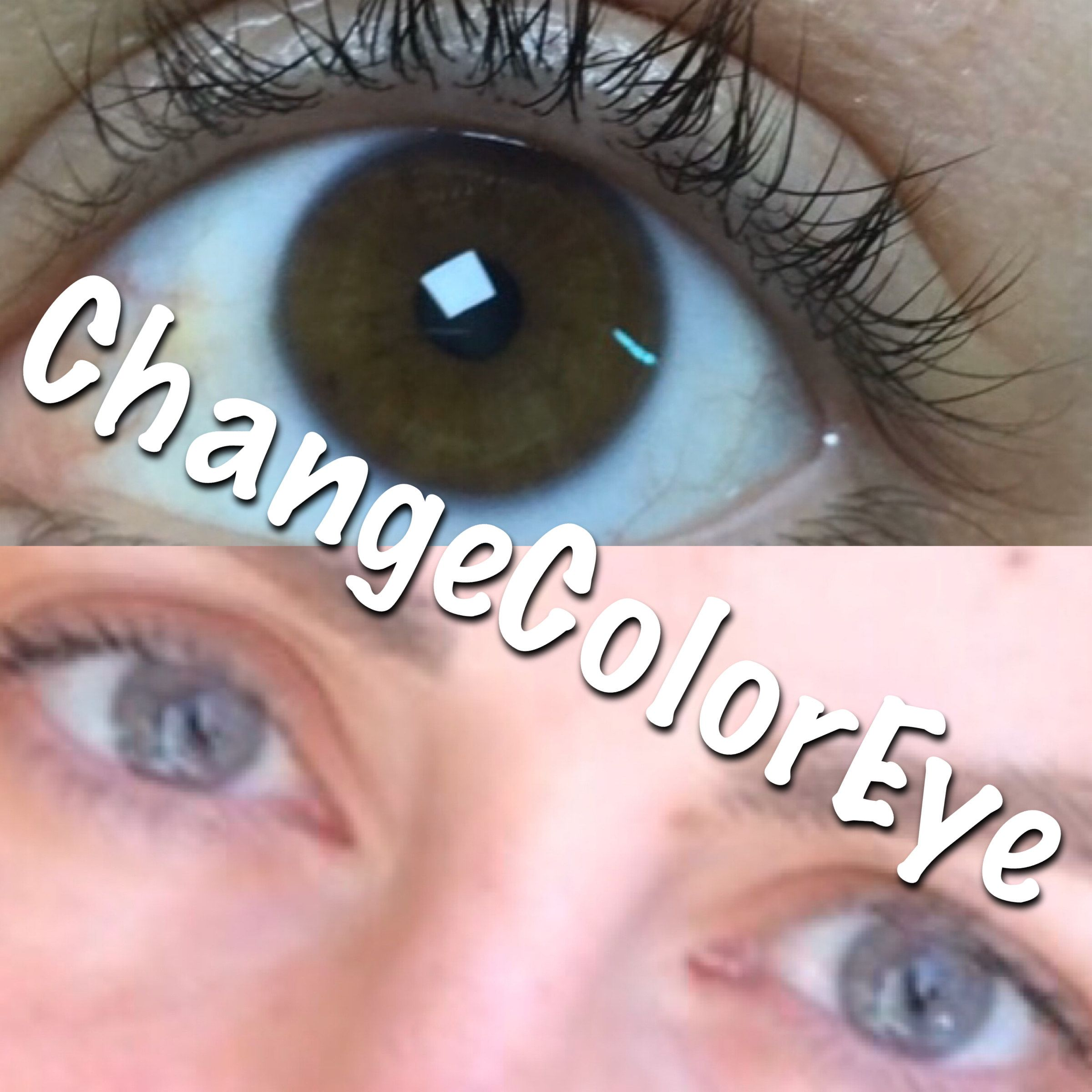 Eye Color Change Before After With Laser