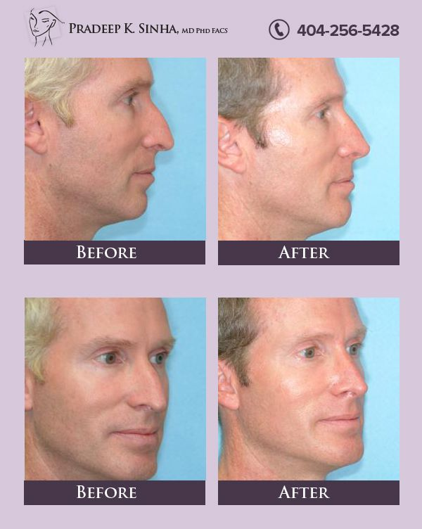 Dr Pradeep Sinha Is A Facial Plastic Surgeon Who Performs Rhinoplasty To Help The Patients To Improve Their Facial Nose Reshaping Rhinoplasty Facial Plastic