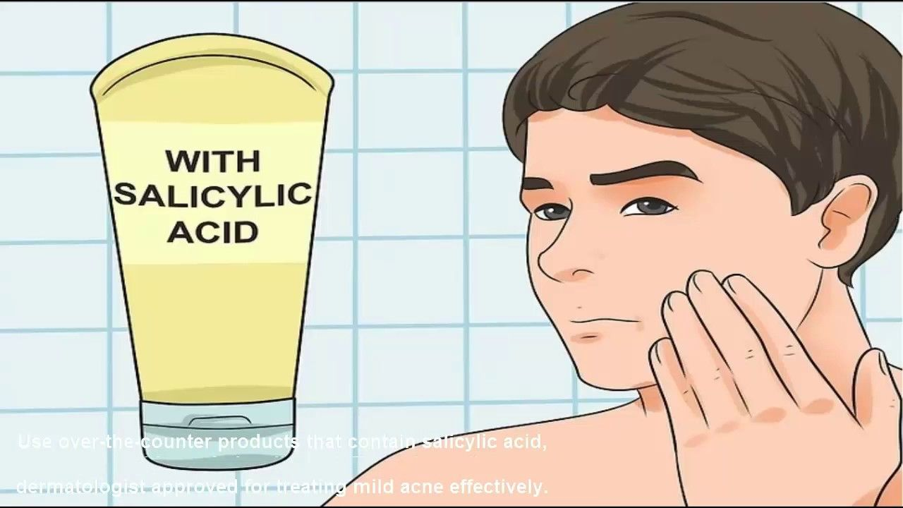 How to Treat Acne (Teen Boys) How to Treat Acne (Teen Boys) new picture
