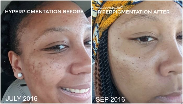 Hyperpigmentation And All Natural Skin Care Regimen Update Hyperpigmentation Natural Skin Care Regimen Hyperpigmentation Treatment