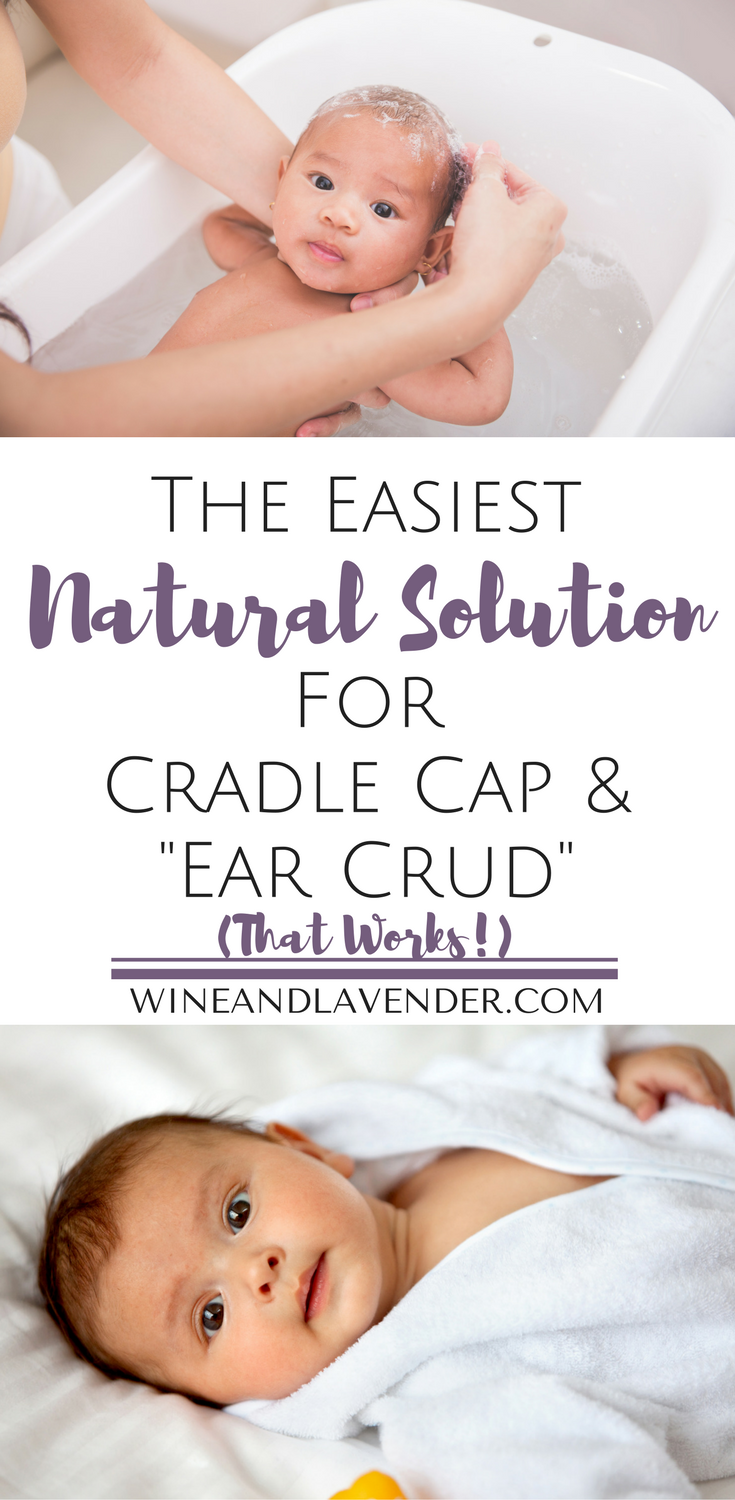 The Easiest Natural Solution For Cradle Cap And Ear Crud Cradle Cap Baby Cradle Cap Cradle Cap Treatment