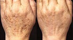 Ce remède de riz protège votre peau du veillissement et la réhydrate