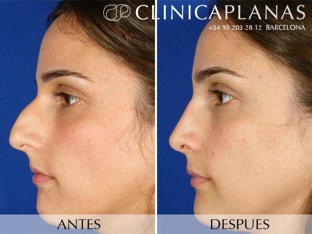 Ejemplo De Una Rinoplastia Caso 3 Rhinoplasty Nose Jobs Nose Surgery Nose Job