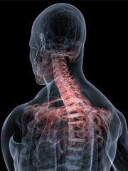 Dureri de spate dureri de spate mai mici dupa somn