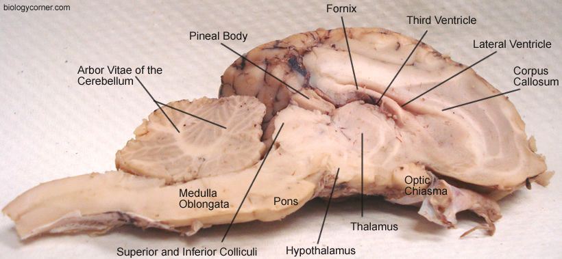 Sheep Brain Dissection Anatomy Physiology Pinterest Brain