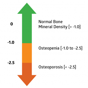 13+ What is a normal t score for osteoporosis information