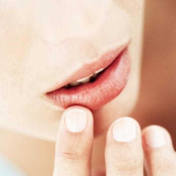 If You Are Suffering From Mouth Sores Make Sure You Avoid