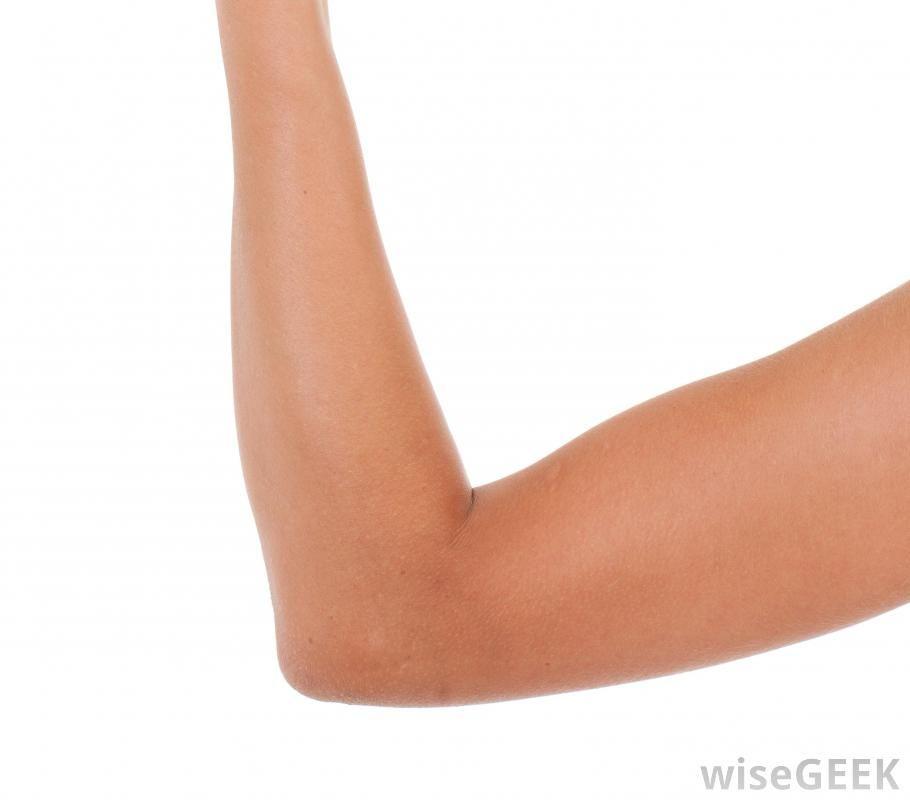 Elbow bursitis also known as students or olecranon