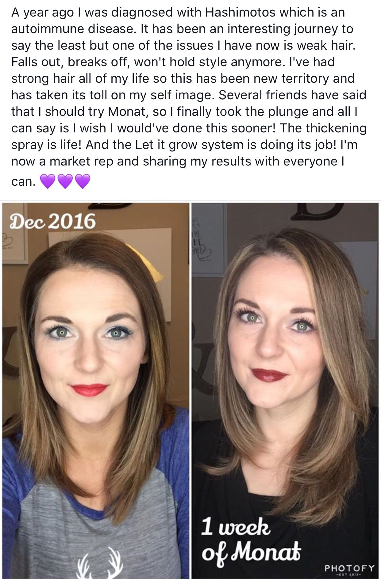 Monat Real Results with Hashimoto Disease. Amazing thicker