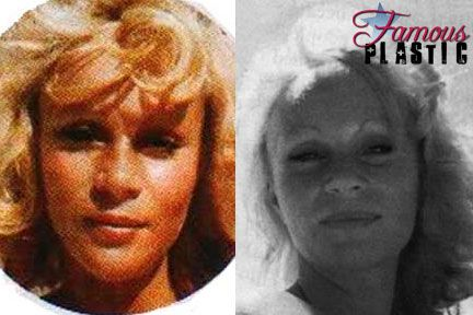 Jocelyn Wildenstein Before Plastic Surgery Condition