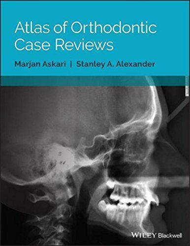 Atlas of orthodontic case reviews pdf download e book medical e atlas of orthodontic case reviews pdf download e book fandeluxe Image collections