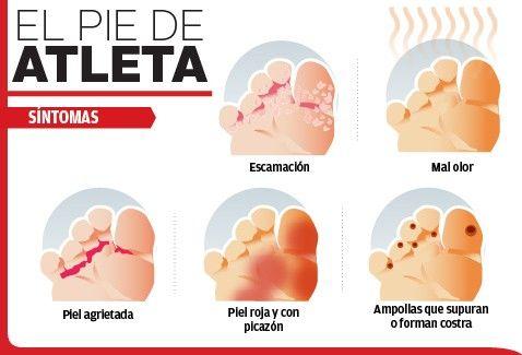 síntomas de infección de levadura del ombligo