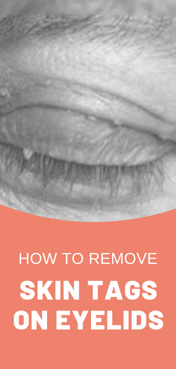 Skin tags can appear on your eyelid, as well as other areas of your body. Here are a few ways to remove skin tags on your eyelids... #QuickColdSoreRemedies #skintagremedy
