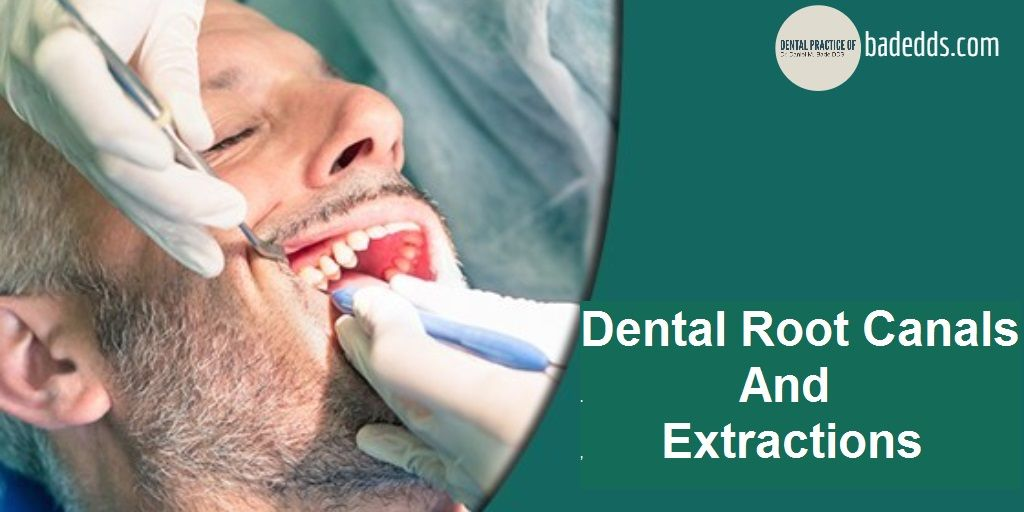 Root Canal Dental, Root canal, Dentist