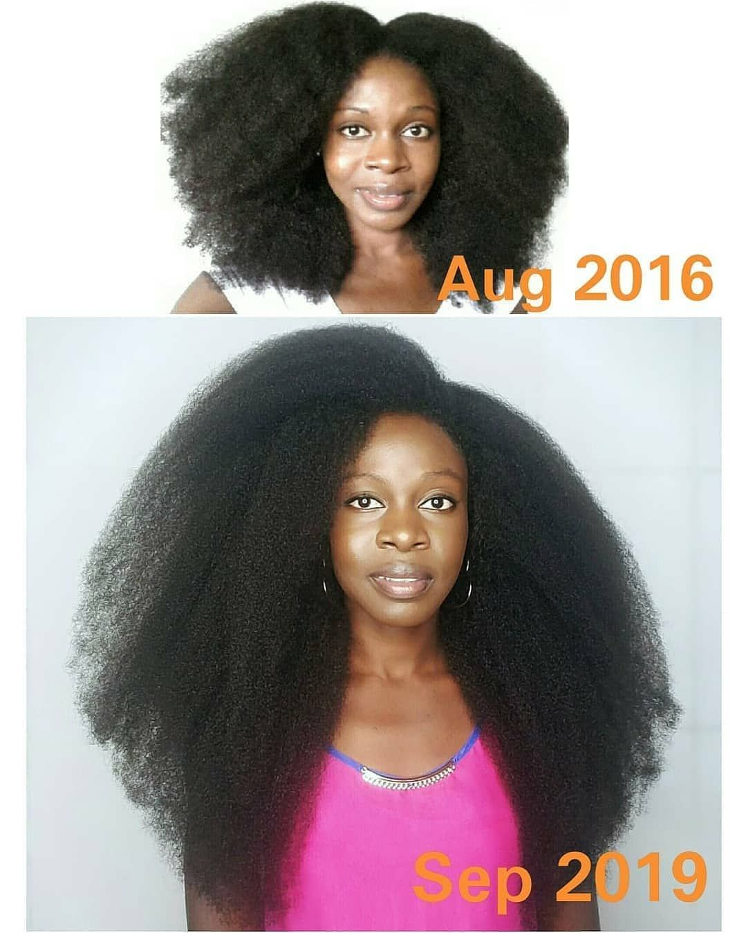 50ff97bb55ff6c3624f7d3a9ca4aebea - How To Get Rid Of Nits In Afro Hair
