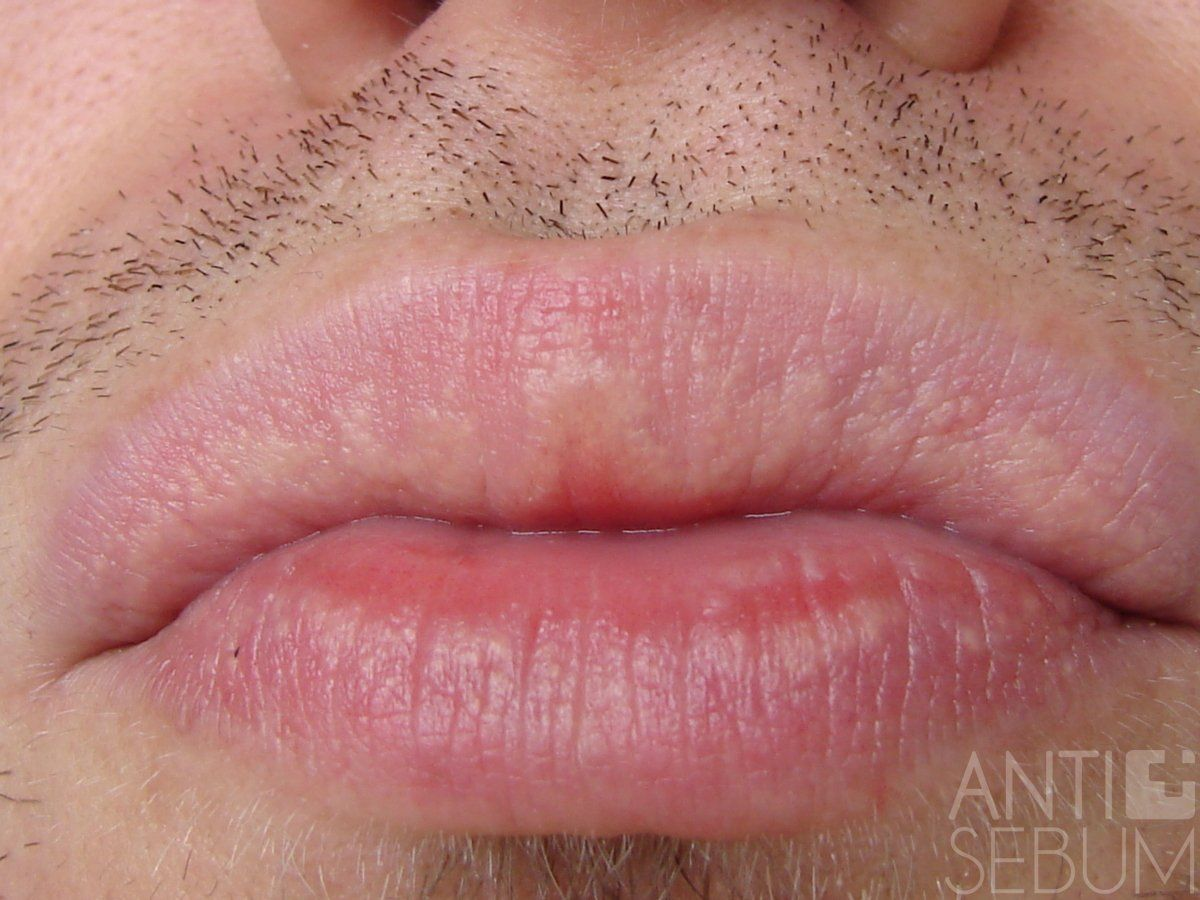Fordyce Granules On The Lips The Spots Can Show Up As Single Or