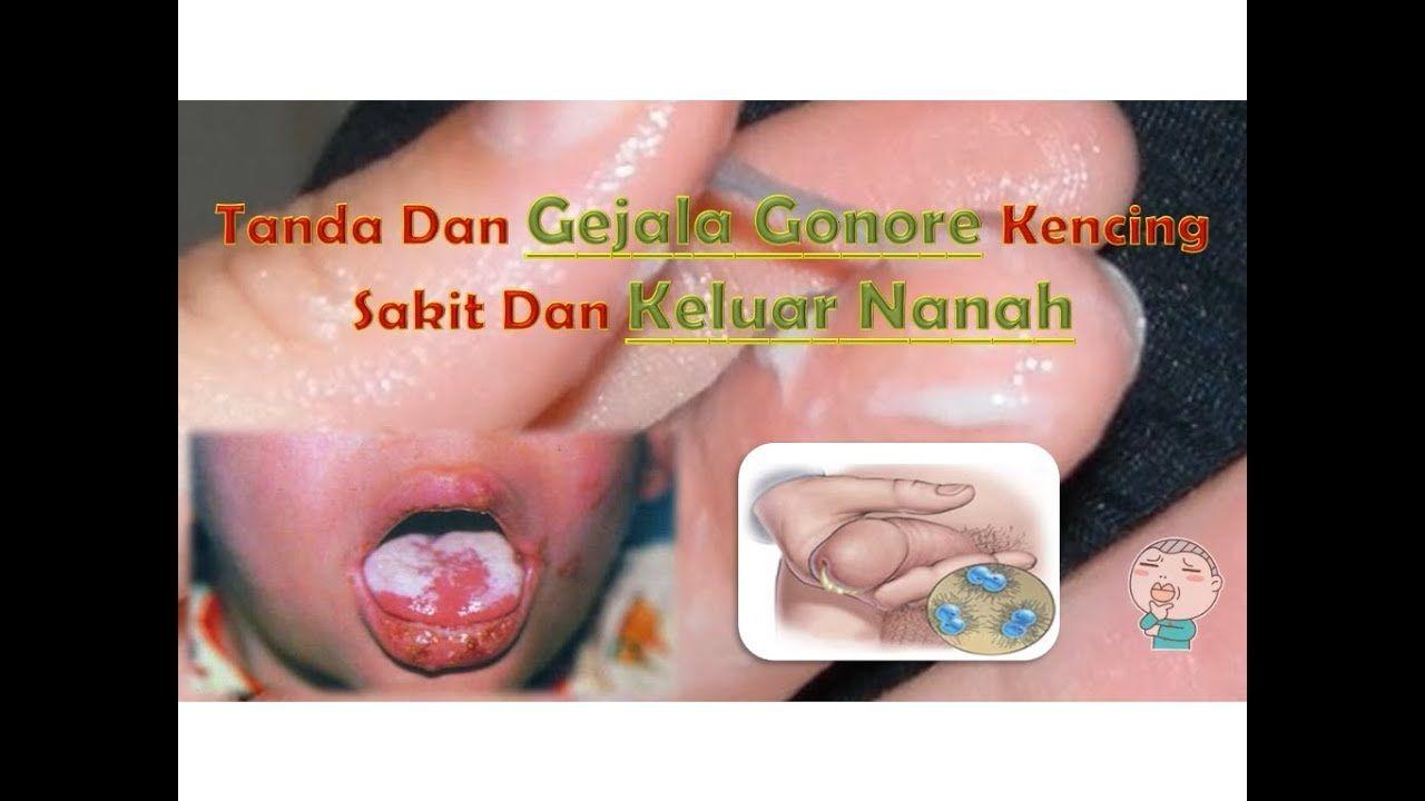 Tanda Dan Gejala Gonore Kencing Sakit Dan Keluar Nanah Tanda Penyakit