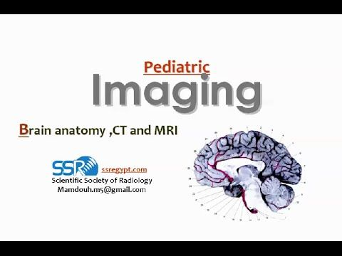 Imaging of Pediatric brain anatomy - DRE 1 - Dr Mamdouh Mahfouz ...