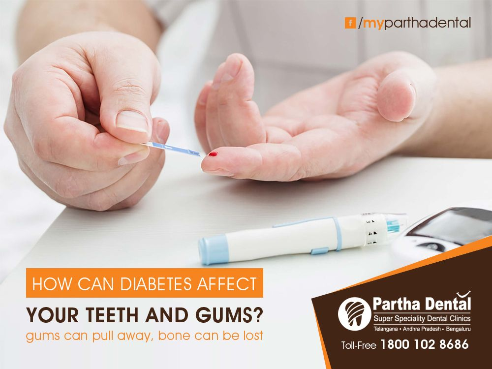 Tooth decay and gum diseases are caused by dental plaque