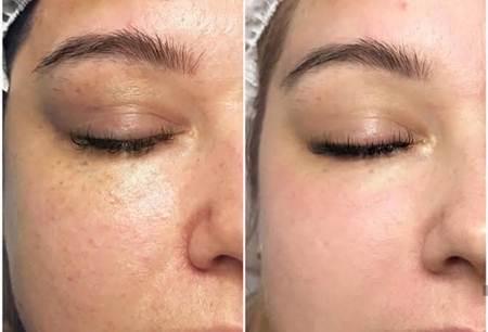 تجربتي مع جهاز ديرما بن قبل و بعد لاخفاء حفر الوجه Dermapen