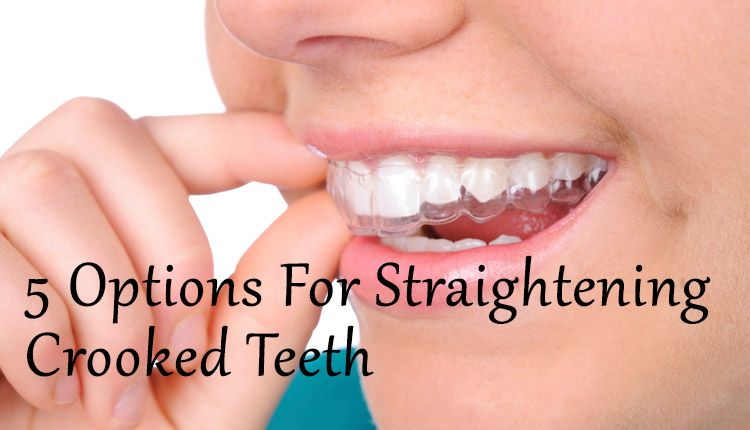 straighten teeth at home reviews