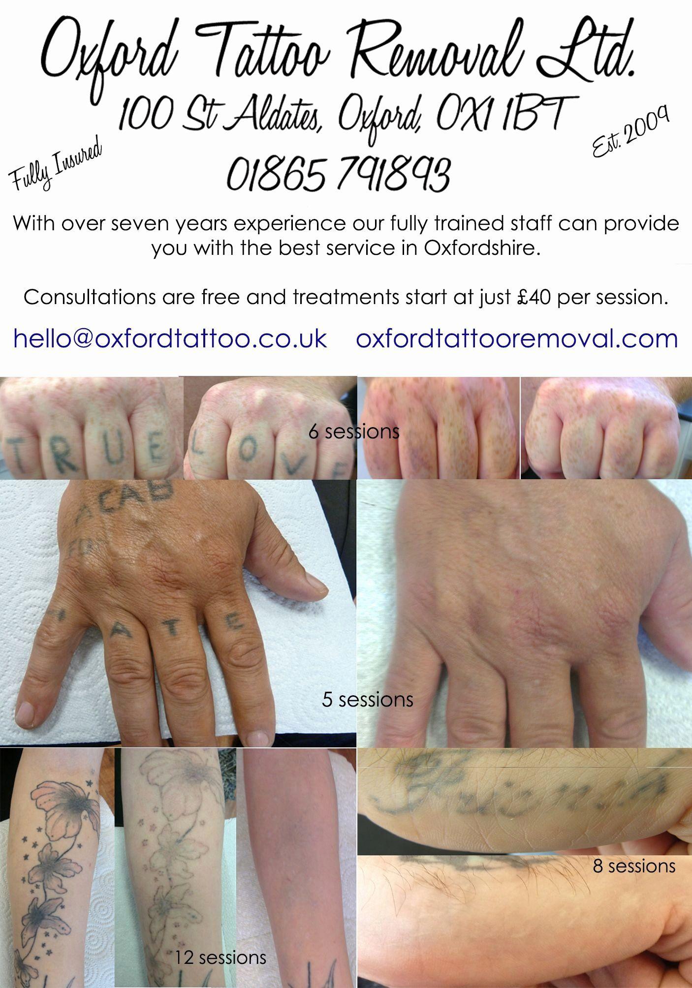 Pin By Rox Coronado On Tattoos Tattoo Removal Finger Tattoos