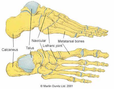 Lisfranc Joint Injury Explained X Rayctmri Pinterest Ankle